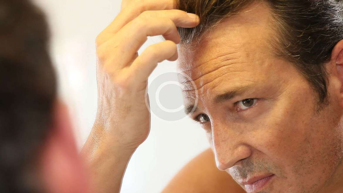 Laser Hair Loss Therapy